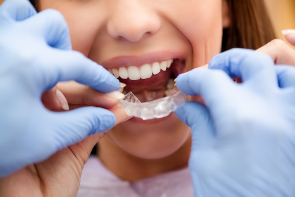 Deciding On Clear Braces To Have Straighter Teeth? The Time To Commit Is Now