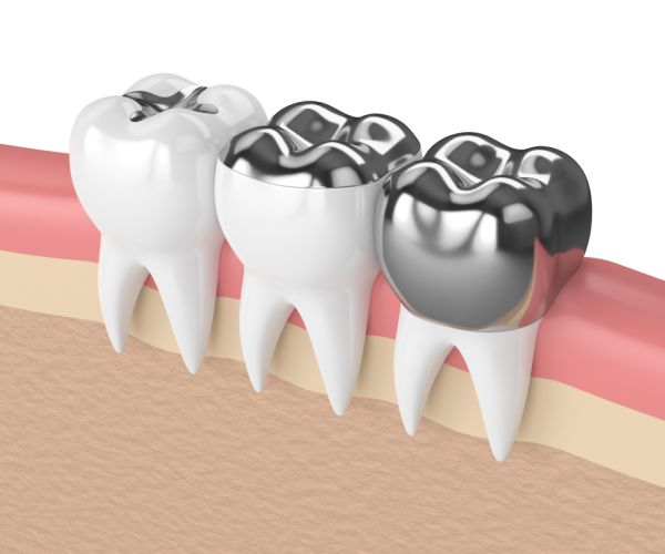Are Composite Fillings The Best Way To Deal With Cavities?