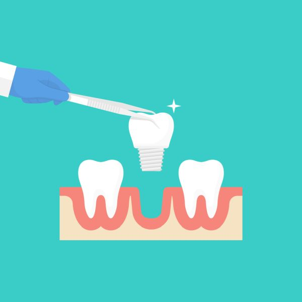 Tooth Replacement Options For Missing Teeth