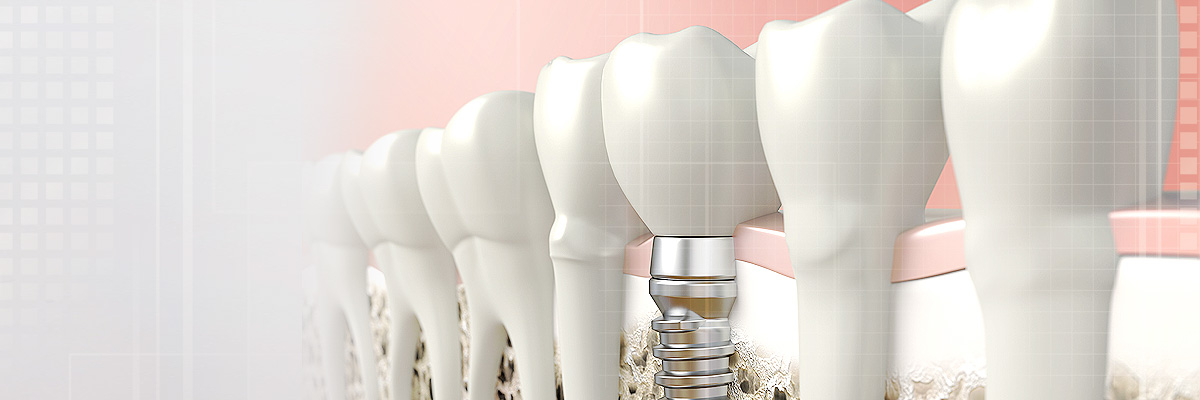 Roswell Implant Dentist