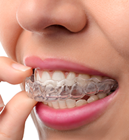 Clear Aligners - Almost Invisible Braces Roswell, GA