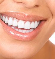 Teeth Whitening Services Roswell, GA