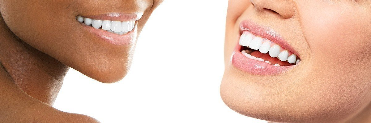 Roswell Dental Restoration